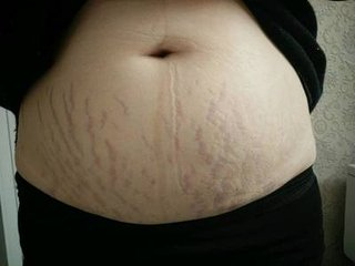 妊娠纹怎样能消除?你是试过这样去纹吗?